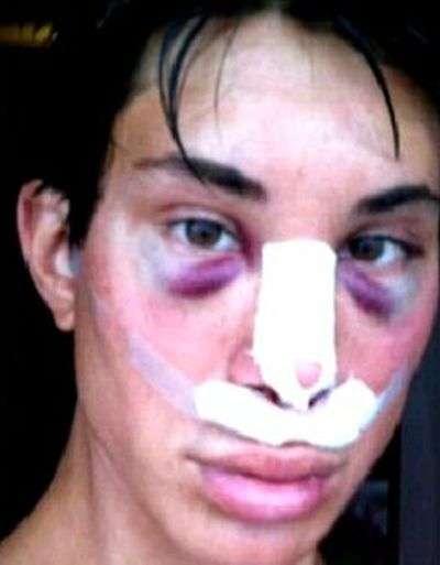 Жертва пластичної хірургії (11 фото)