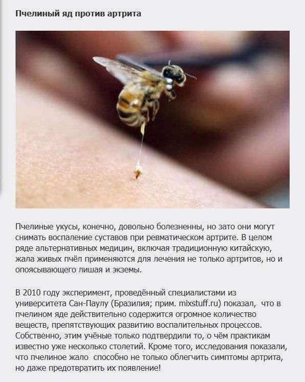 Самі дивні методи лікування різних захворювань (7 фото)