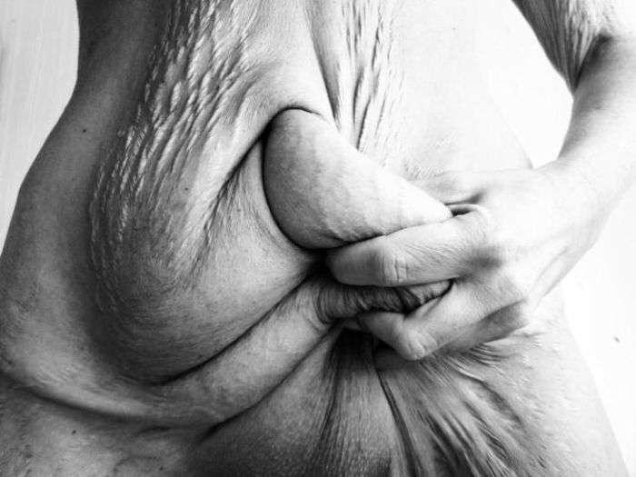 Наслідки схуднення на 50 кілограм (4 фото)