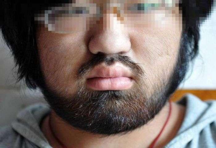 Побічний ефект від лікування апластичної анемії (10 фото)