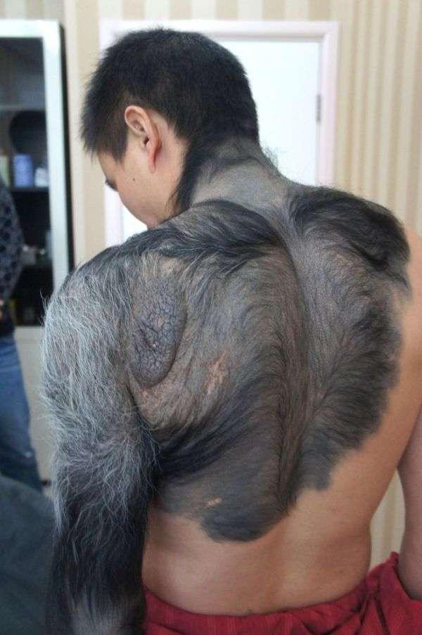 Китайський хлопець, якого прозвали перевертнем (6 фото)