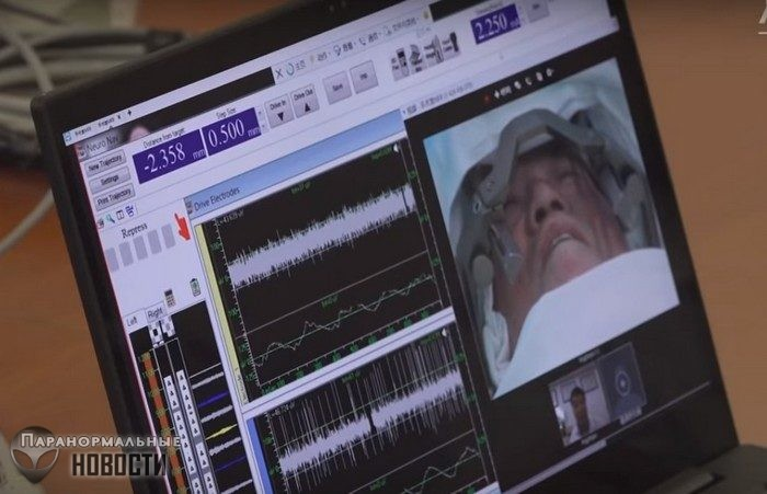Хирург провел операцию на мозге, находясь за 3 тысячи км от пациента Тайны и мифы