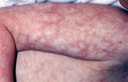 Доброкачественные поражения кожи болезни,доброкачественные поражения кожи,здоровье,кожа