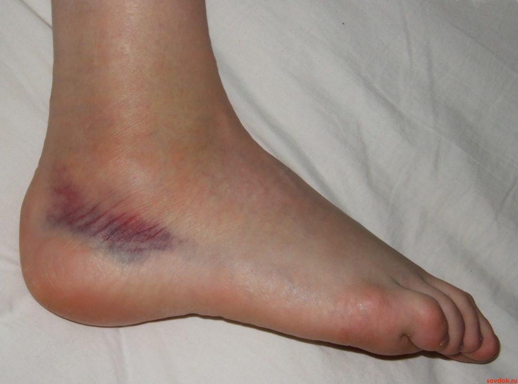 Лечение гематом на ногах болезни,гематомы,здоровье,травмы,ушибы